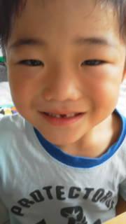 歯 ナギサビール 前歯